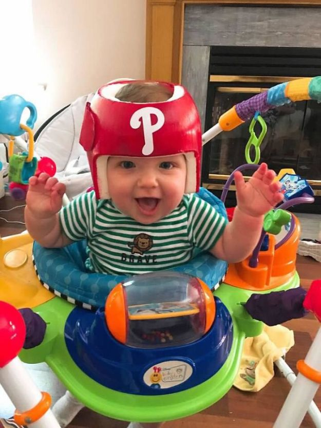 children-son-helmet-support-celebrity-chrissy-teigen-5c07d9dfd4030__700 Chrissy Teigen Has Shared A Photo Of Her Son With A Head-Shaping Helmet, People From All Around The World Respond Design Random