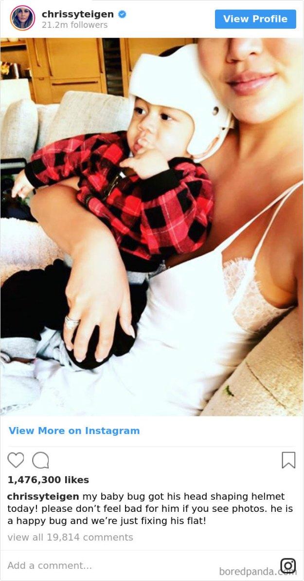children-son-helmet-support-celebrity-chrissy-teigen-5c07da52402ac__700 Chrissy Teigen Has Shared A Photo Of Her Son With A Head-Shaping Helmet, People From All Around The World Respond Design Random