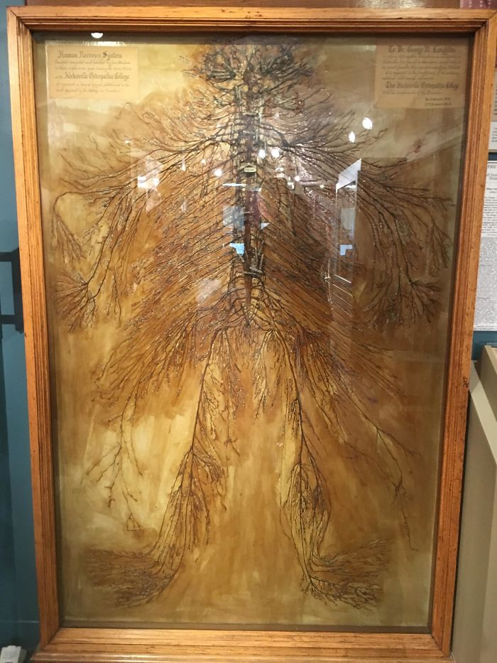 This Is An Intact Human Nervous System