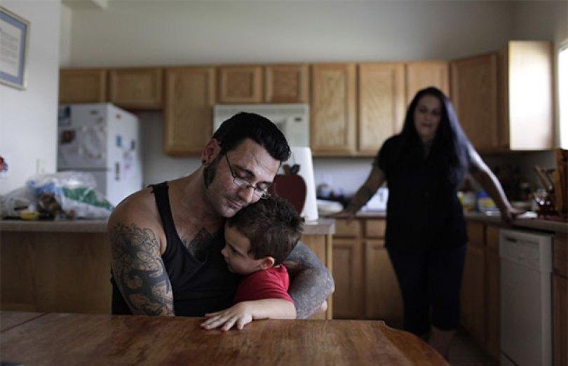 former racist nazi face tattoo removal bryon widner 10 5d4c001a7efa9  605 - Relembre o ex-Skinhead que se arrependeu de suas tatuagens depois de ser pai