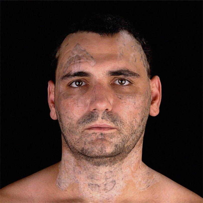 former racist nazi face tattoo removal bryon widner 7 5d4c00148860b  605 - Relembre o ex-Skinhead que se arrependeu de suas tatuagens depois de ser pai