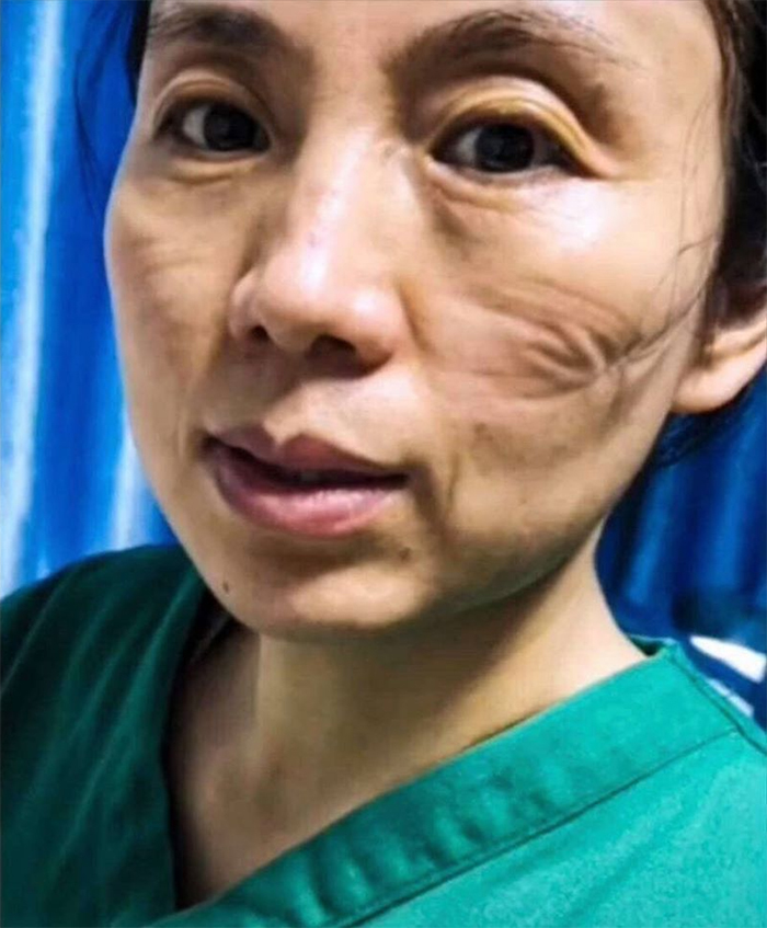 Nurse Takes A Selfie To Show What Wearing A Mask Does To Her Face