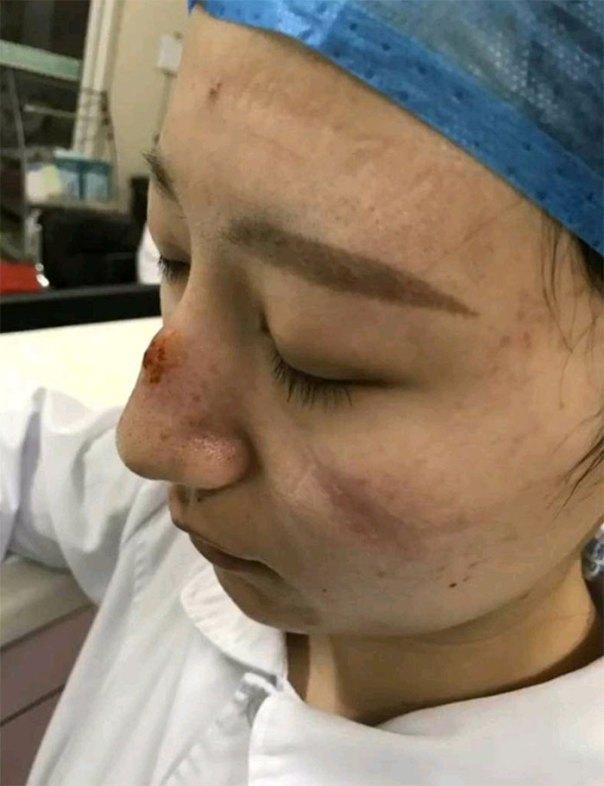 Gear Marks On Nurse's Face
