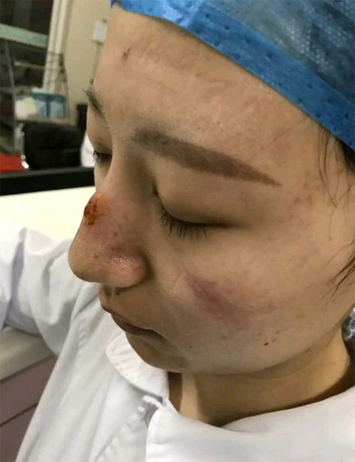 Gear Marks On Nurse's Face