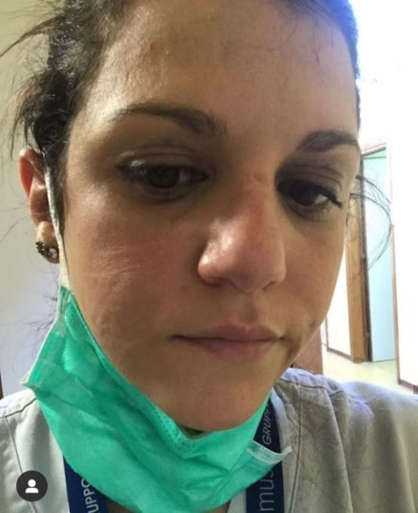 Nurse After Hours Of Work In Intensive Care