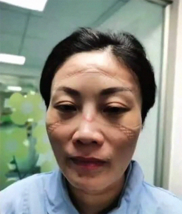 Nurse's Face After A Long Shift