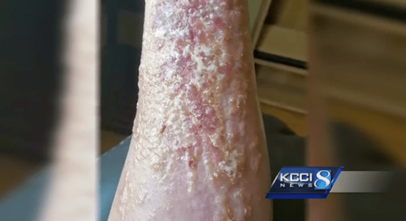 A Toxic Weed That Causes Severe Rashes Is Spreading In