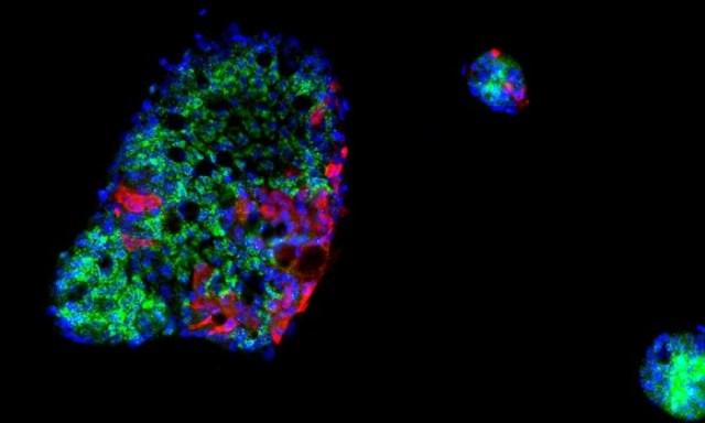 COVID-Human-Intestinal-Cells.jpg