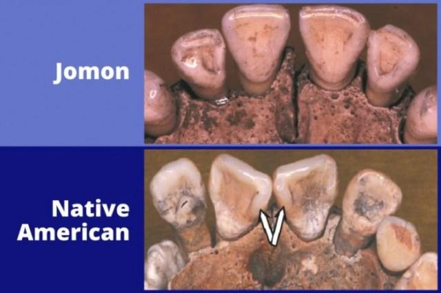Jomon-and-Native-American-Teeth-777x518.jpg