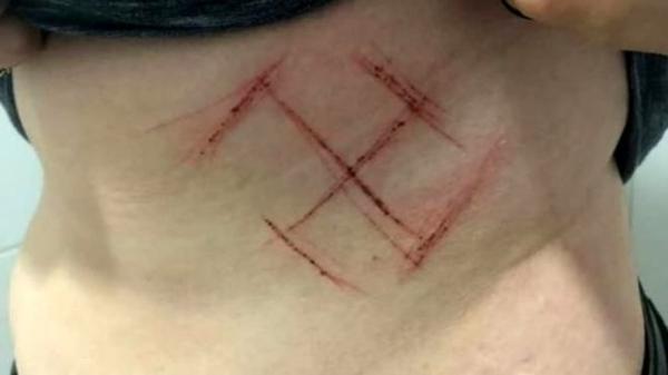 Tatuagem de sangue: agressores usaram canivete para gravar símbolo nazista na barriga da vítima