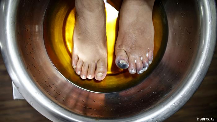 Ameesha Chauhan dips her feet in a hot solution at Kathmandu hospital on May 27.