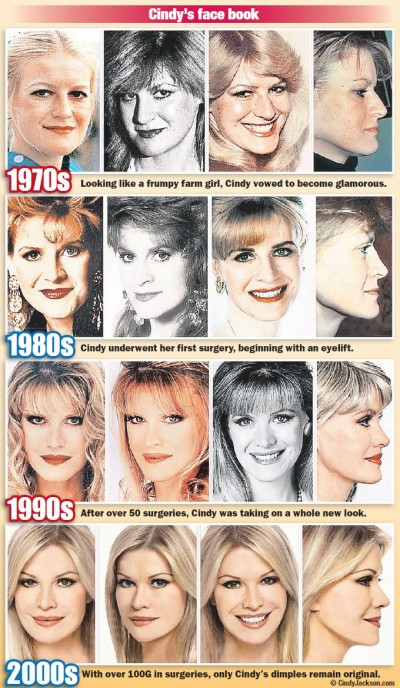 Cindy Jackson, 25 years of plastic surgeries