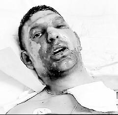 heridos en líbano (2)
