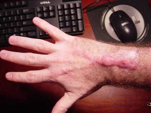 Scar Spread