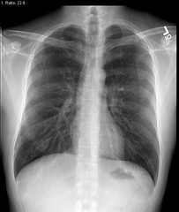 Right lower lobe infiltrates