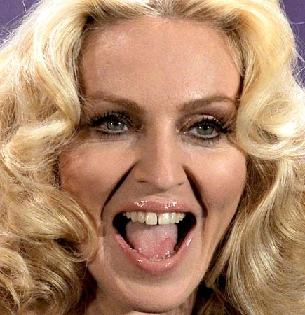 Madonna's teeth gap, celebrity imperfections