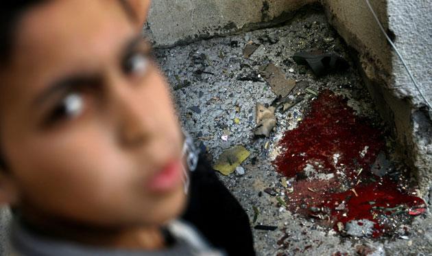 Gallery Gaza: Israel Gaza Conflict Enters 17th Day