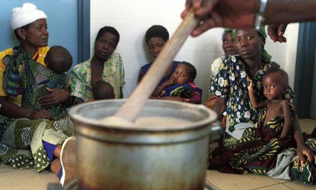 Malnourished children in Malawi