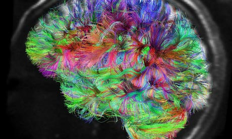 https://i1.wp.com/static.guim.co.uk/sys-images/Guardian/Pix/pictures/2013/6/26/1372266456245/The-human-brain-010.jpg