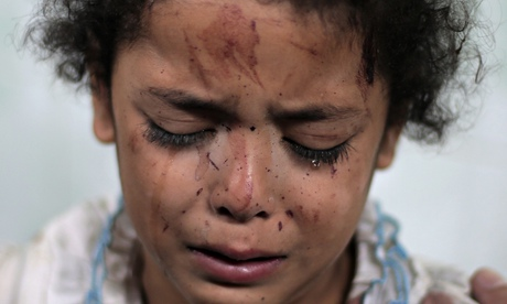 A Palestinian girl cries while receiving treatment for her injuries