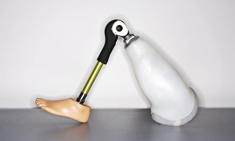 Prosthetic leg: no 'ball and socket' joint here. Photograph: Radius Images/Alamy