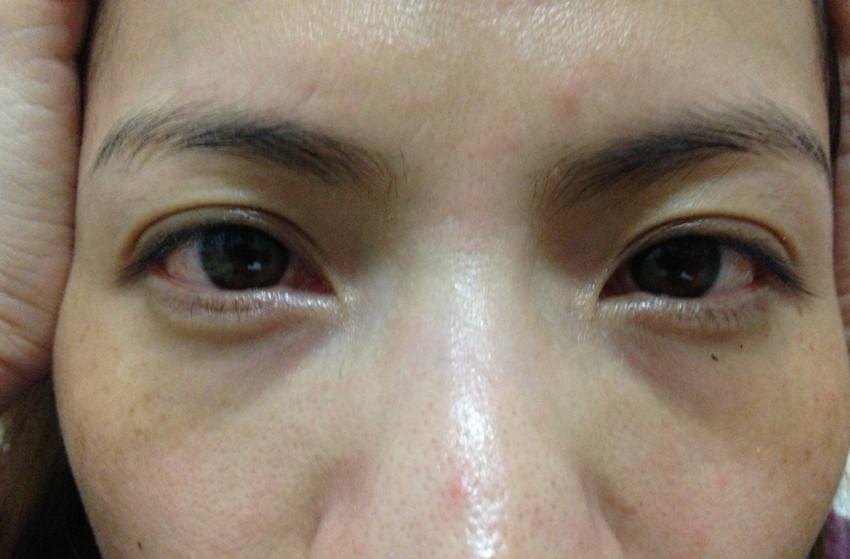 黑眼圈可以做手術嗎
