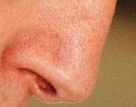 Rikkivetyä hyödynnetään myös hajupommeissa.