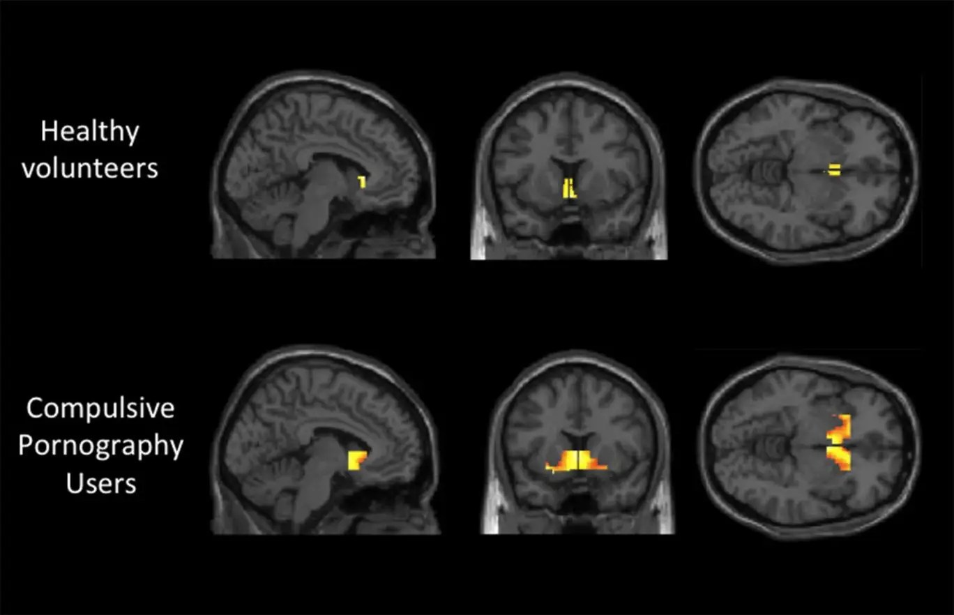 Ography Addiction Leads To Same Brain Activity As