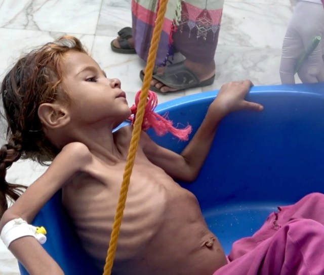 A Severely Malnourished Girl