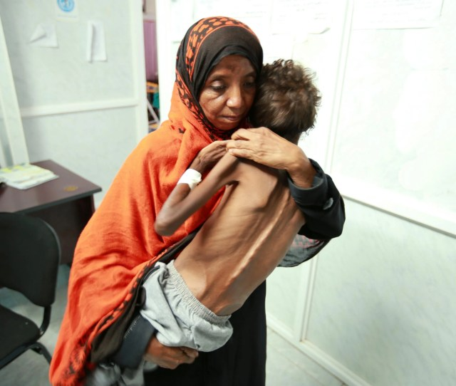 Yemen Facing The Worlds Worst Famine In  Years Warns Un
