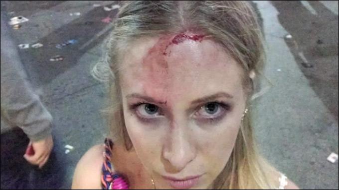 Woodbury's head injury / Screen capture via KVUE.com.