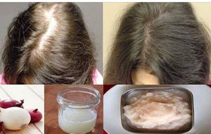 نتيجة بحث الصور عن صور عصير البصل علي الشعر