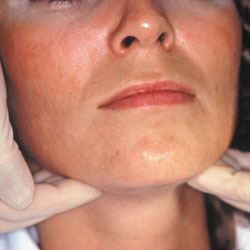 Surgery for other orofacial issues like oral cancer.