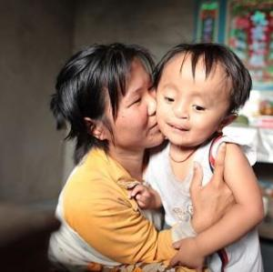 Mother holding 4 yr old Vietnamese boy w cleft
