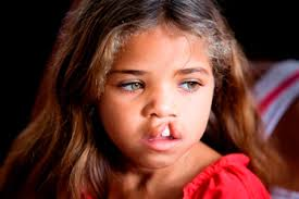 Pretty little girl with brown hair and open cleft lip permanently revealing tooth .