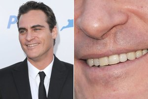 Head shot of Joaquin Phoenix + cleft lip closeup.