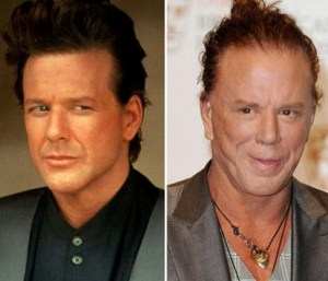 Mickey-Rourke-Before-And-After-Plastic-Surgery