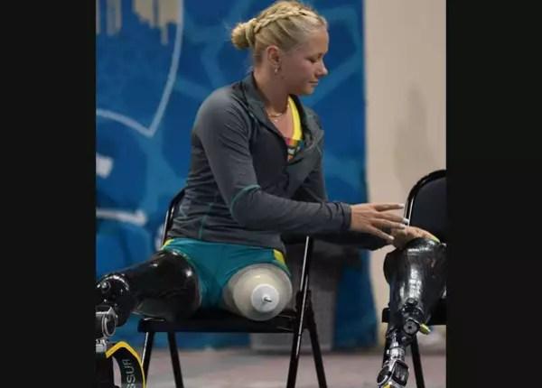 Vanessa removing prosthesis