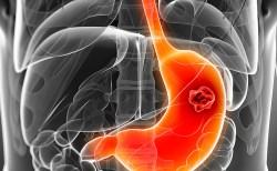 Ung thư dạ dày là bệnh có thể chữa nếu phát hiện kịp thời