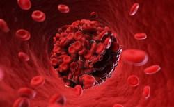 Các tế bào ung thư máu sẽ gây nên triệu chứng khác nhau