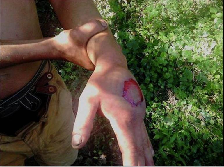 Um militant dit avoir été touché à la main par un tir de Flashball le 10 spetembre 2014.
