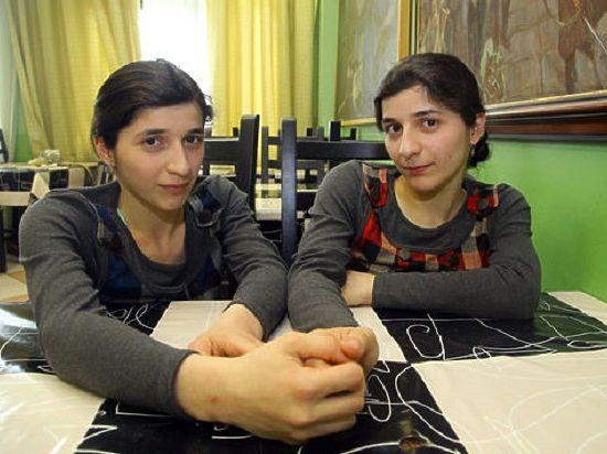 Сиамский близнец Зита Резаханова умерла после тяжелой ...