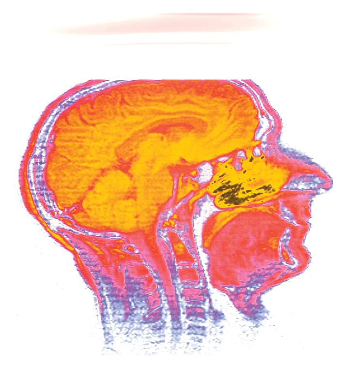 Morch_BR-MRI-Head