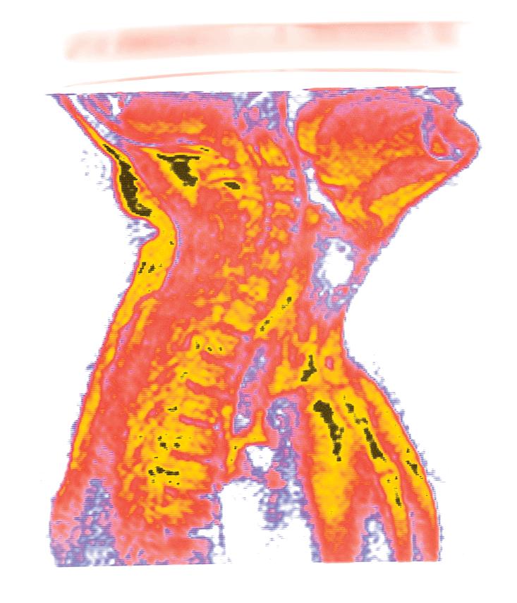 Morch_BR-MRI-Neck