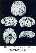 einstein-brain