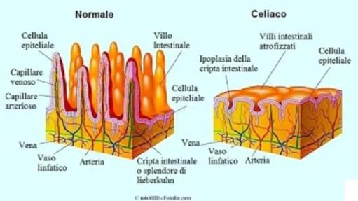 Risultati immagini per celiachia