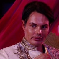 TOWIE: Bobby Norris unveils SHOCKING results of nose job on The Only Way Is Essex — leaving viewers suspicious he's secretly had 'far more' surgery than he's confessed to