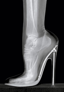 Foot in high heel x-ray