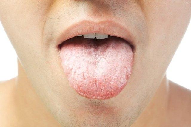 Image result for kanker lidah