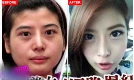 Wanita Taiwan yang menjalani prosedur bedah pengubahan kontur wajah. Gambar kiri sebelum operasi dan foto kanan sesudah tulang wajahnya dipotong.